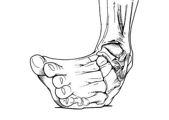 Inversion sprain to the ankle